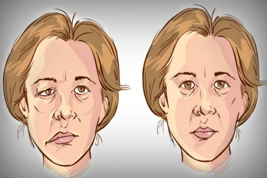 თუ ინსულტის ეს 3 ძირითადი სიმპტომი იცი, პაციენტის გადარჩენა შეგიძლია
